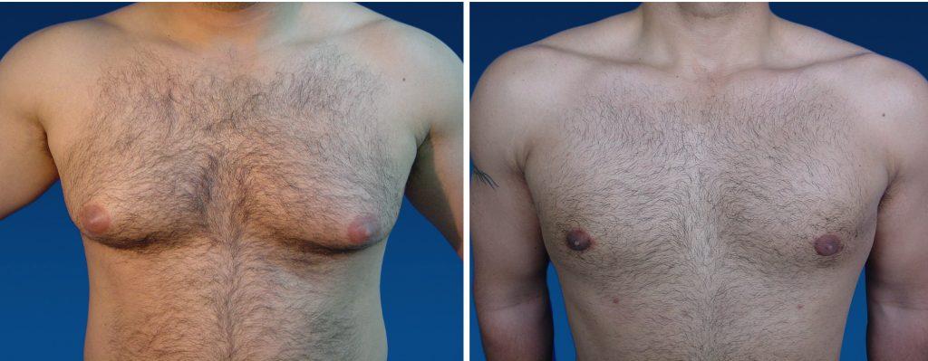 ginecomastia antes y despues