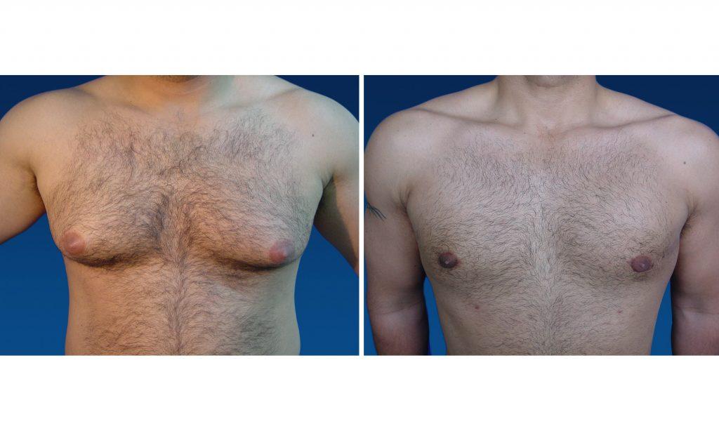 causas de ginecomastia en hombres