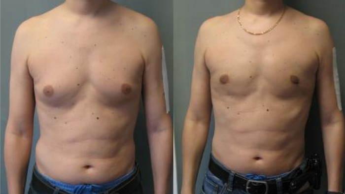 antes y despues de la ginecomastia