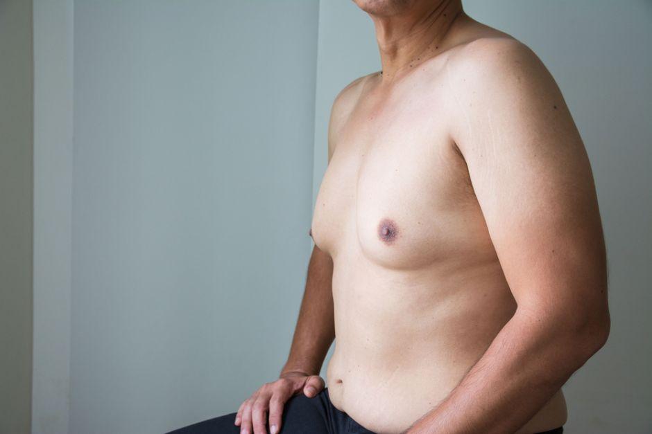 ginecomastia antes y despues dela operacion