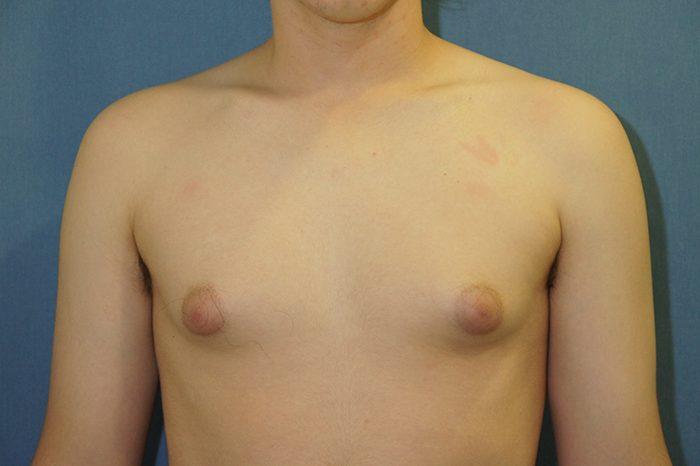 ginecomastia antes y despues de la operacion