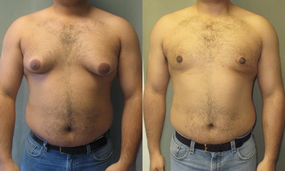 operacion de ginecomastia antes y despues