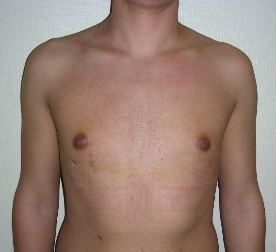 ginecomastia en niños por ultrasonido