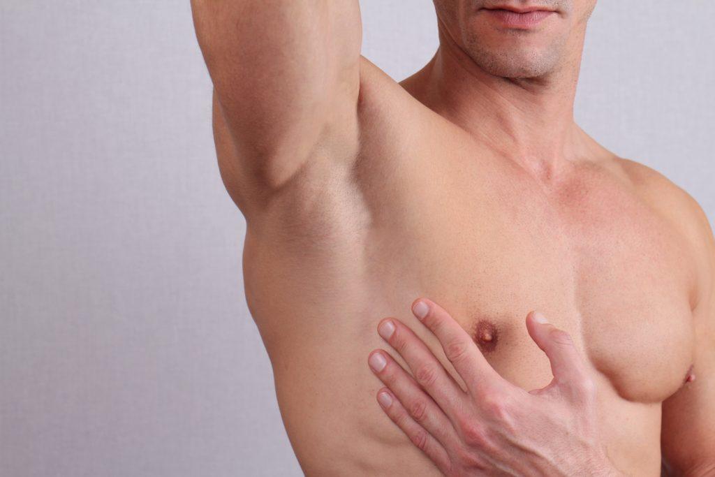 ginecomastia por esteroides
