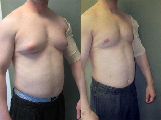 ginecomastia operacion antes y despues