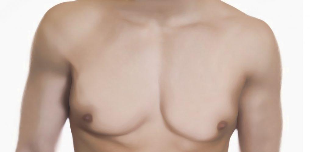 ginecomastia operacion peru