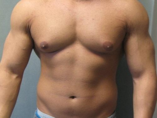ginecomastia operacion chile