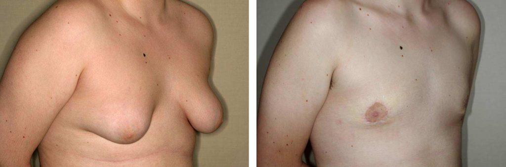 operacion ginecomastia vuelve a salir