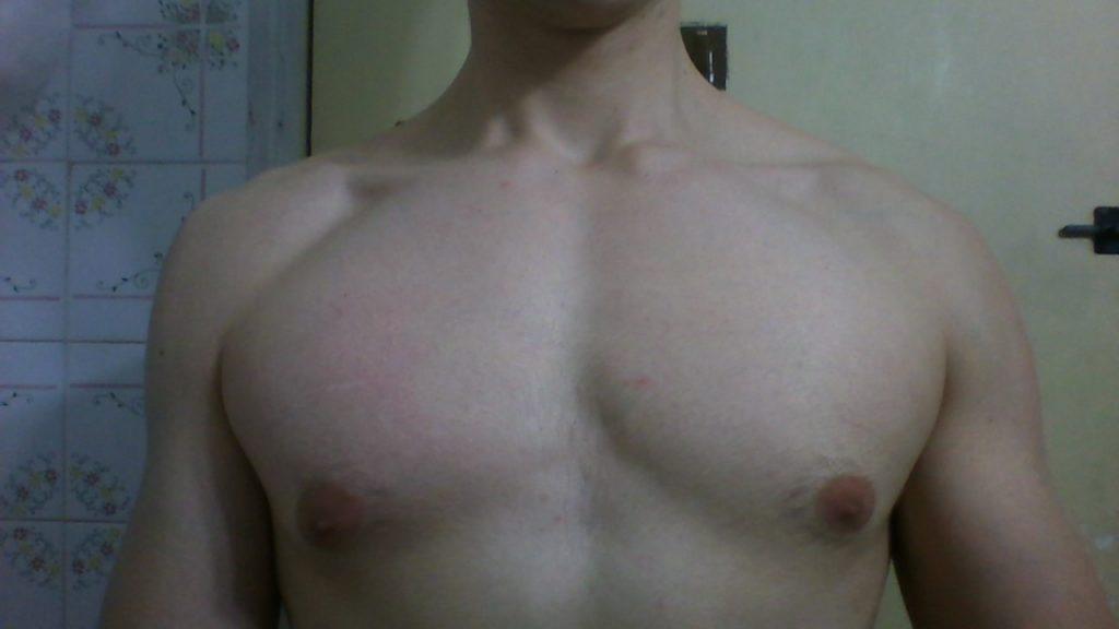 ginecomastia operacion precio peru
