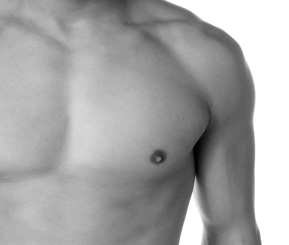 operacion ginecomastia alicante